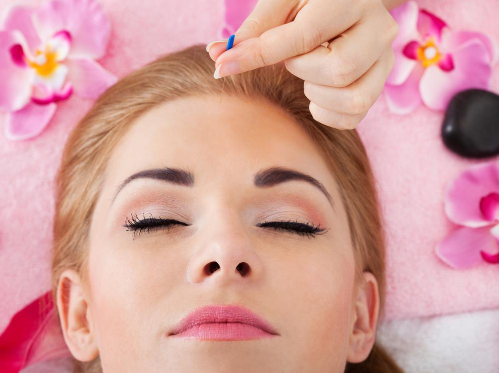 Best Acupuncture Treatment in Kendall