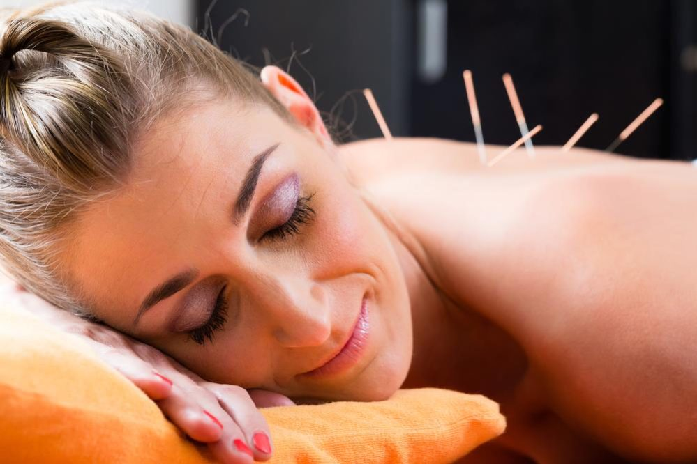 Best Acupuncture Supplements