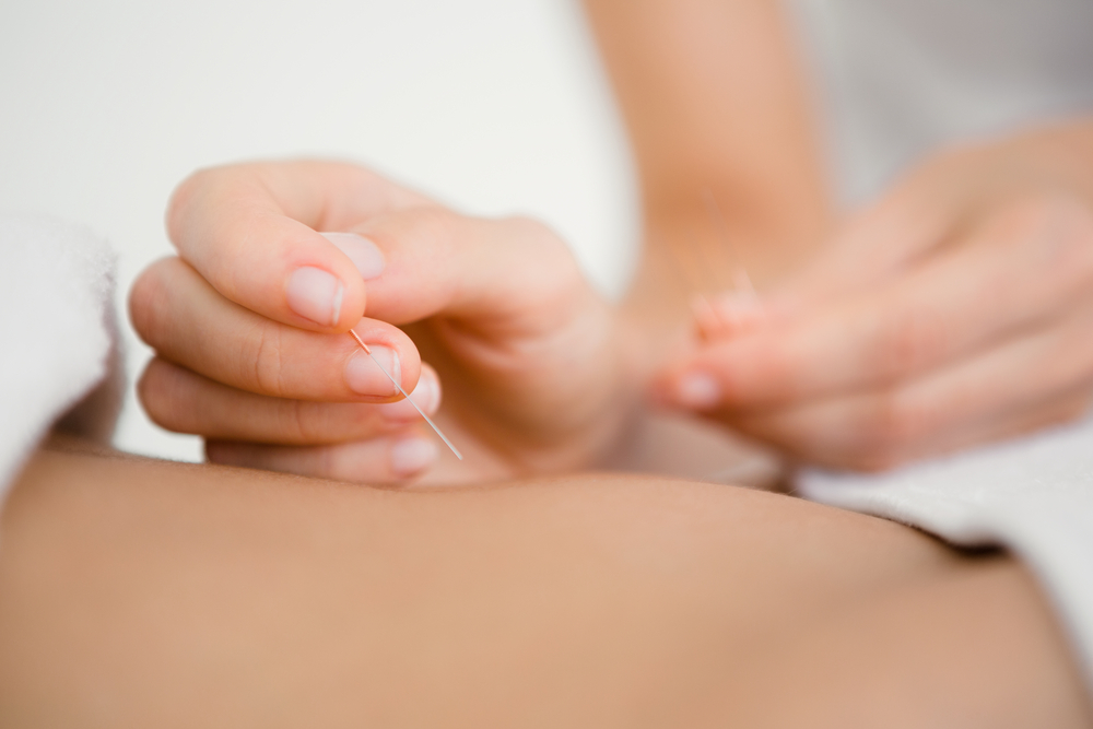 Acupuncture Services in Kendall