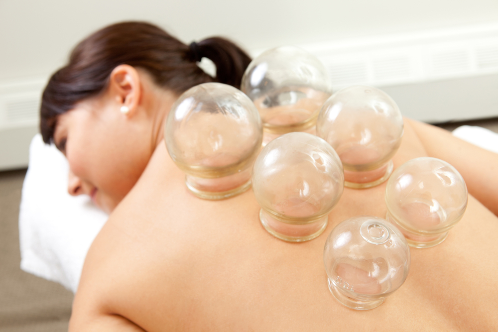 Cupping Services in Kendall