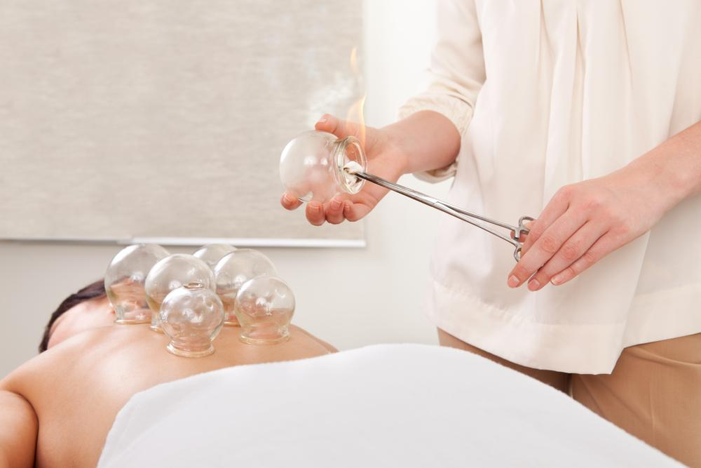 Therapeutic Suction Cups